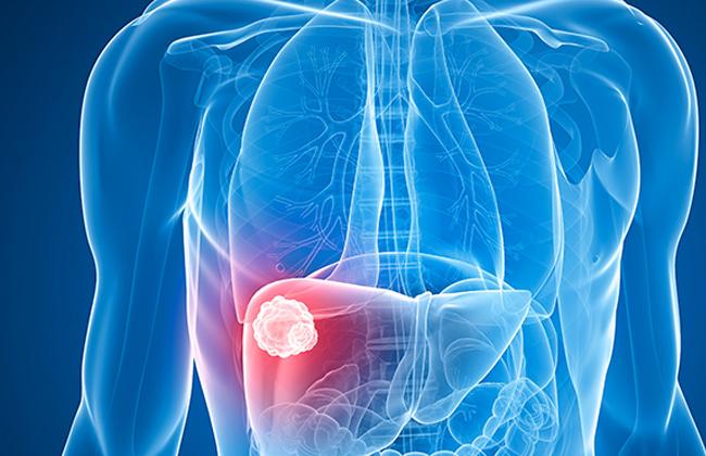 خبراء: ارتفاع معدلات الإصابة بسرطان الكبد بين المصريين.. والاكتشافات الحديثة حققت تقدمًا في العلاج